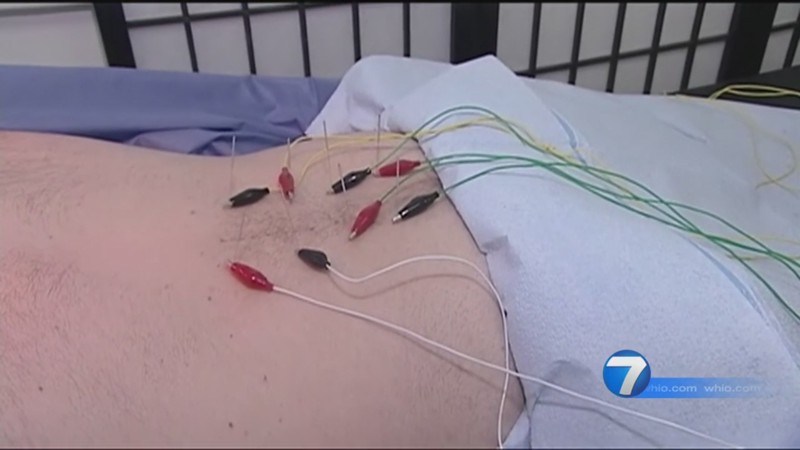 Ohio Medicaid Covers Acupuncture